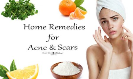 Natural Ways To Get Rid Of Acne