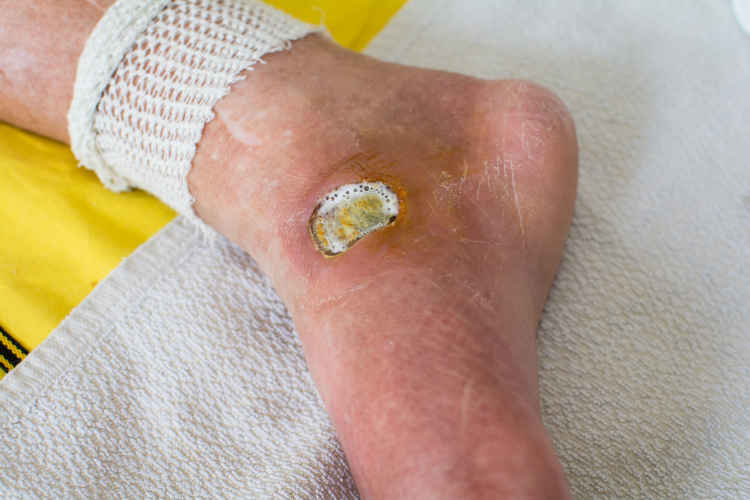 Serious Sores That Do Not Heal Source: Cleveland Clinic Health Essentials