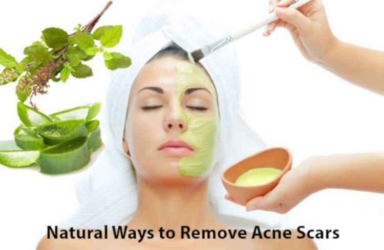 Natural Remedies for Acne and scare removal