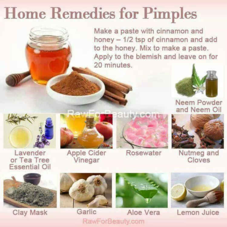 Natural ways to get rid of Acne and Pimples