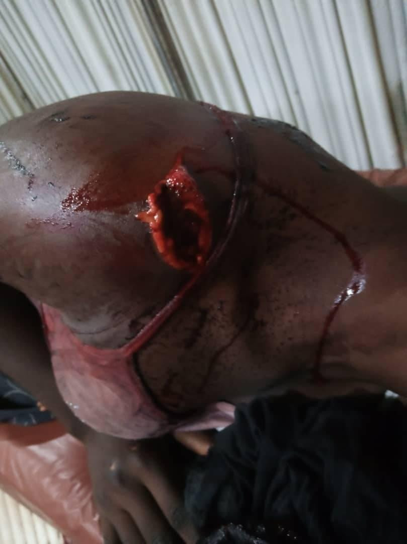Graphic: Suspected herdsmen invade farm settlement in Ekiti, machete three women